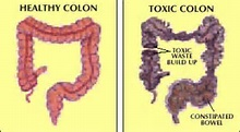 toxic-colon